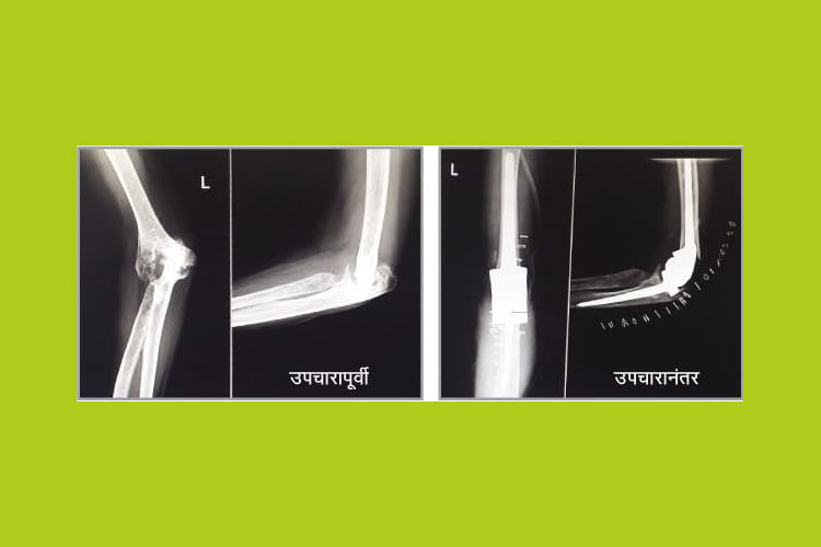 Successful Surgery carried out on artificial joint implant at the hospital